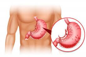 10 nhân tố có ảnh hưởng xấu đến dạ dày của bạn | Bệnh viện Hoàn Mỹ Sài Gòn