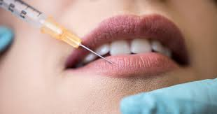 how juvederm lip injections made me