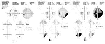 Visual Field Chart Interpretation Visual Field Test