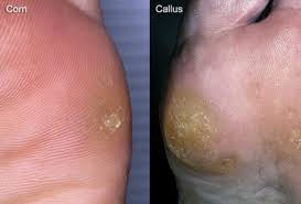 corn disease picture of corns and calluses