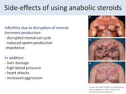 Steroids Side Effects The Secrets World Of Steroids Ourboox