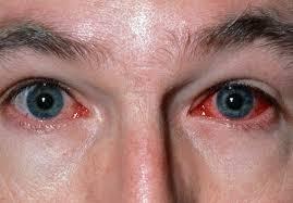 Doctors Note For Pink Eye Viral Conjunctivitis Eye Disorders Msd Manual
