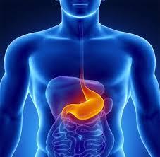 Resultado de imagen para cirugía antireflujo gastroesofagico