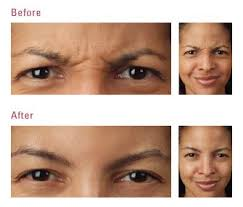 are botox injections safe
