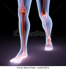 Image result for x rays of bones