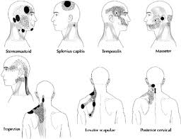 Pain Referral Patterns Magnificent Myofascial Pain Patterns Showing The Trigger Point X And Its Pain