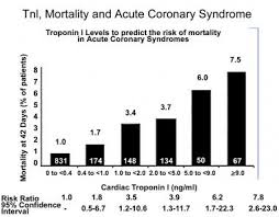 Acute Coronary Syndrome Workup Approach Considerations