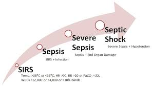 Stages of Sepsis via Pinterest.