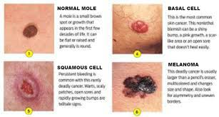 Mole Chart For Skin Cancer Skin Cancer Dermatologist In Bethesda Md
