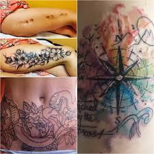 тату на шраме польза и вред татуировки на шраме