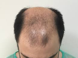 Hair transplantation renowned