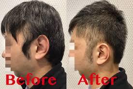 40代の男性におススメな清潔感のある髪形トップの薄毛をカバー