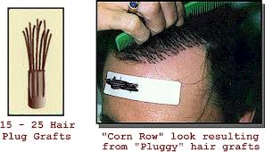 hair transplant how it works hair transplant how it works and why we lose hair