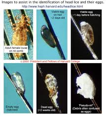 lice infestation frequently asked questions