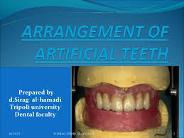 teeth setting arrangement of artificial teeth 1