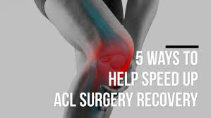 sd up acl surgery recovery