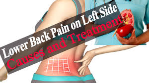 Human anatomy · july 23, 2016. Lower Back Pain On Left Side Causes Of Lower Back Pain Left Side Above Hip Causes And Treatment Youtube