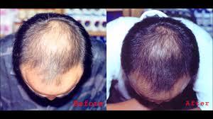 emu oil for hair loss