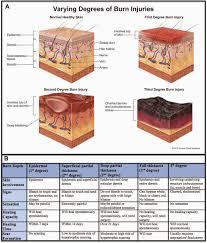 Burn Notice Blog Edition Diagnosis Classification Of Burns