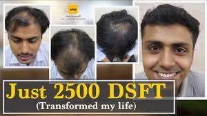 best hair transplant clinic india