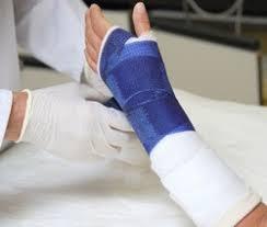 ЛФК при переломе лучевой кости Реферат страница Живи Здорово Лечебная гимнастика после перелома лучевой кости