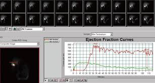 Gallbladder Ejection Fraction Chart Gallbladder Function And Dynamics Of Bile Flow In