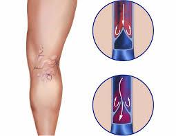 Laserbehandeling kleine spataderen - dccl