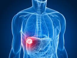 「肝癌」の画像検索結果