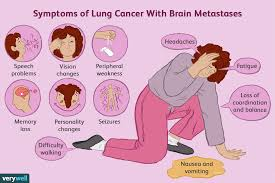 Stage 4 Lung Cancer Survival Rate Lung Cancer Spread To The Brain Treatments And Prognosis
