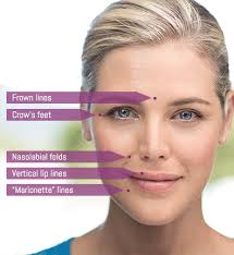 are your wrinkles static or dynamic