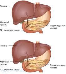 Острый панкреатит справка для врачей  Закрыть