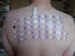 Patch test - Wikipedia