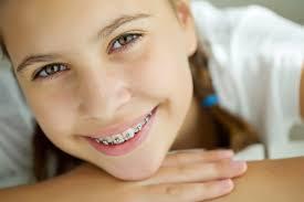 tips for wearing braces belmar