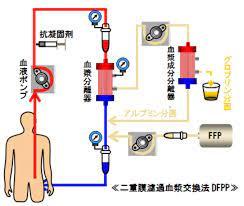 血漿 交換