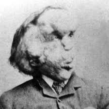 joseph merrick. Exellent Joseph Joseph Merrick Throughout