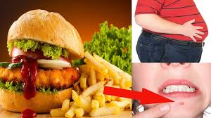 fast food bad for health. Exellent Fast Fast Food Bad Health Effects  What Happens To Your Body When You Eat Too  Much  For