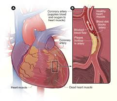 how does heart disease affect women nhlbi nih figure a is an overview of a heart and coronary artery showing damage dead heart