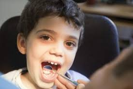 Image result for choosing a family dentist