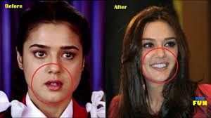 shocking bollywood plastic surgery before and after you won t believe what they looked like you