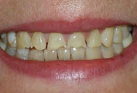 bulimic people teeth. Beautiful People Tooth Enamel Erosion Caused By Bulimia To Bulimic People Teeth R