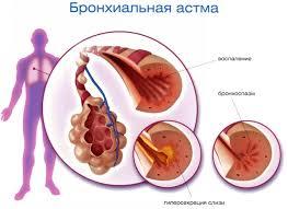 Бронхиальная астма у детей лечение симптомы причины  симптомы бронхиальной асмы у детей