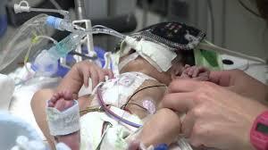 Picu Nurse Picu Nursing At Childrens Jericas Story
