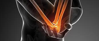 Osteochondrale läsionen des Ellenbogens SpringerLink