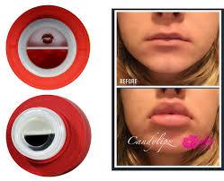 desigener lips 2