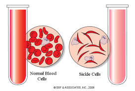 Image result for sickle cell diagnosis