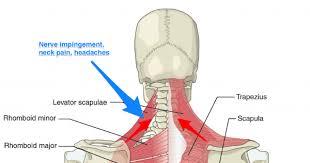 What are the back muscles called quora the teres major aka. The Link Between Posture And Chronic Neck And Upper Back Pain Back Pain And Headache Specialist Burke Va Nova Headache Chiropractic Center