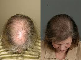 the pattern of hair loss in fpa is diffe then mpa in that the hairline is usually not affected but there is diffuse thinning in the central scalp behind