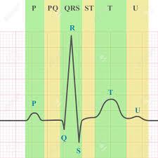 Marking Scheme Of Ecg On Grid Paper Ekg Graph 2d Medical Vector