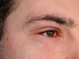 inflammation of the eye symptoms