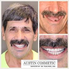 cost of dental implants in austin tx